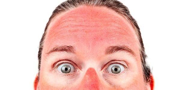4 dicas para recuperar a pele queimada do sol
